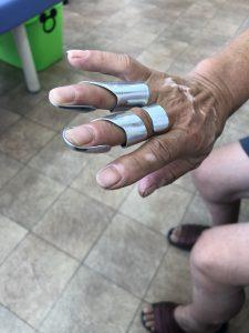 指節間関節の側方動揺